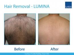 Lumina-BA-Hair-Removal-2-Back-
