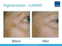 Lumina-BA-Pigmentation-2--