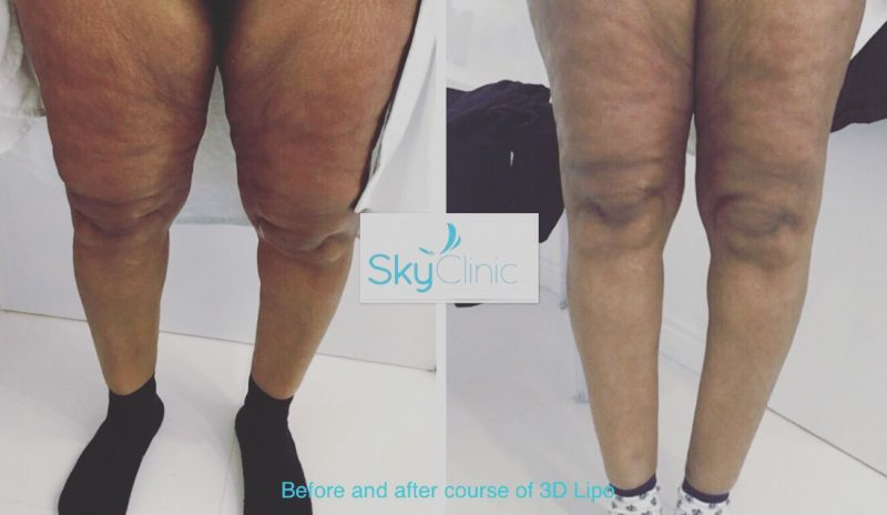 Cellulite Treatment Just after 7 Weeks