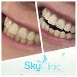 Sky Clinic Teeth Whitening