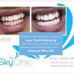 Teeth Whitening Sky Clinic