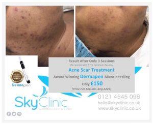 Acne Scar Treatment Results Dermapen