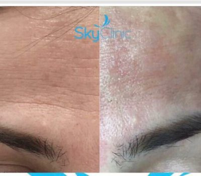 Wrinkle Treatment at Sky Clinic using latest Pure Skin Touch