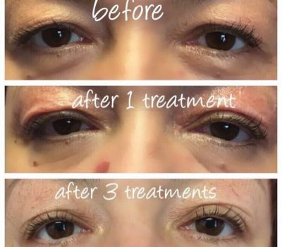 Non Surgical Blepharoplasty at Sky Clinic