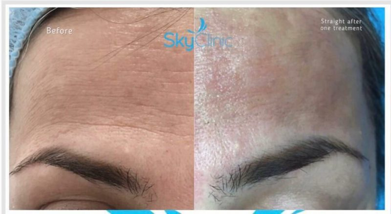 Pure Skin Touch Fine Lines Treatment at Sky Clinic