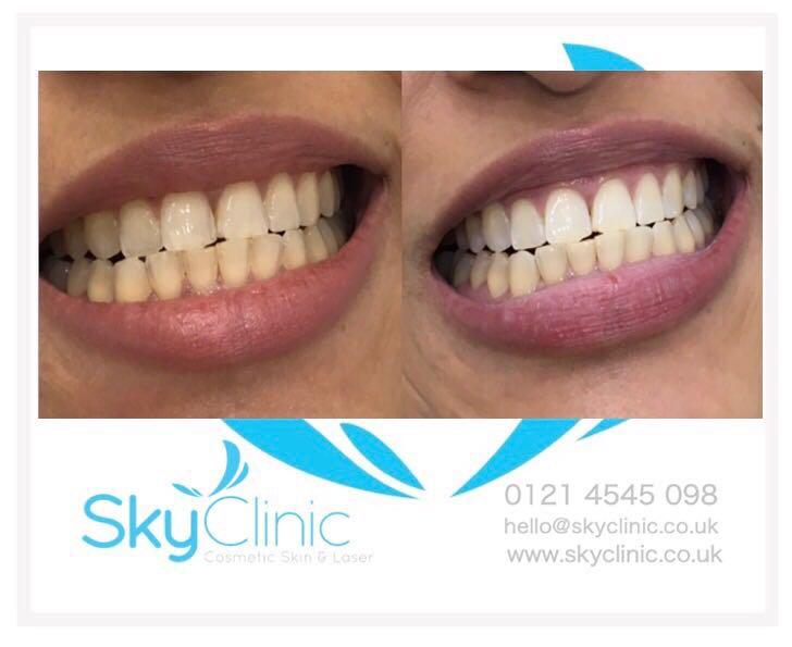Laser Teeth Whitening Sky Clinic