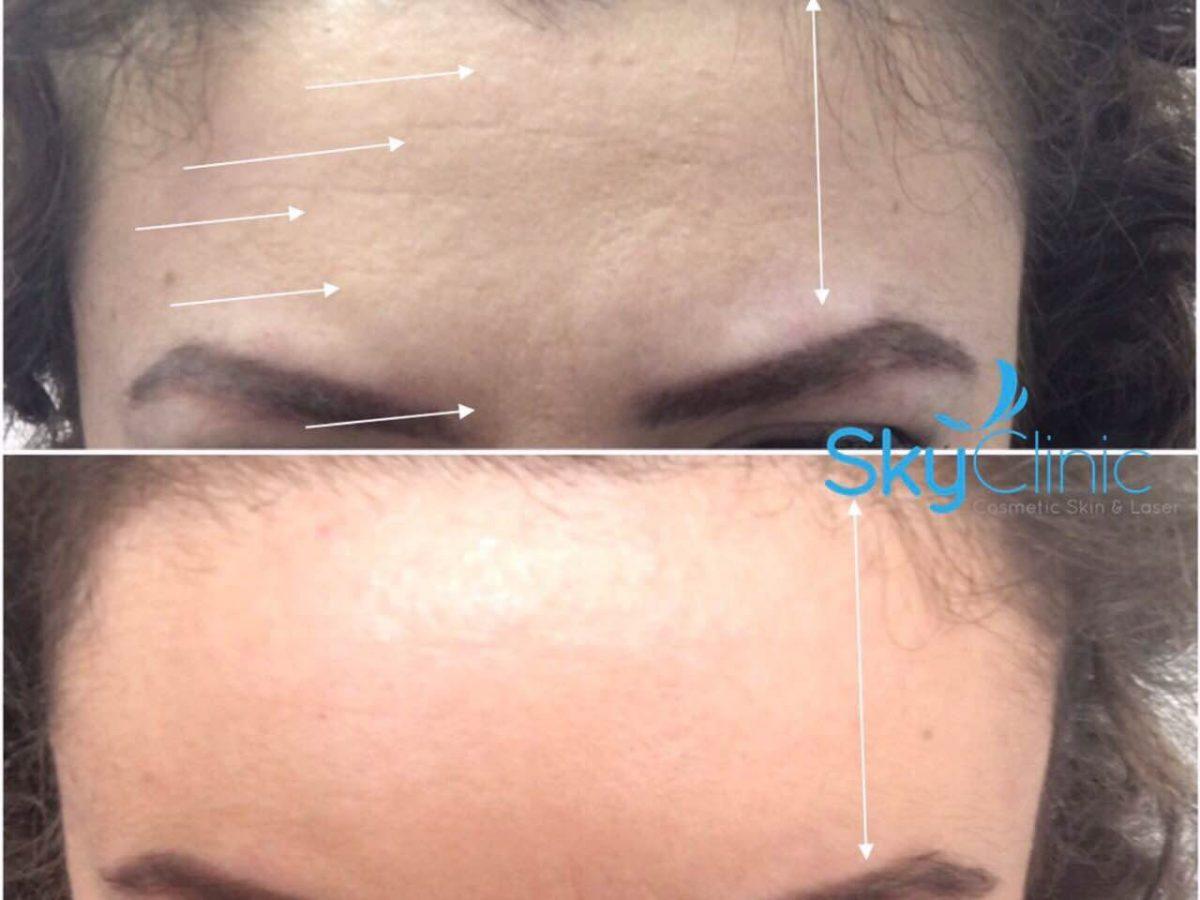 Express forehead lift Sky Clinic