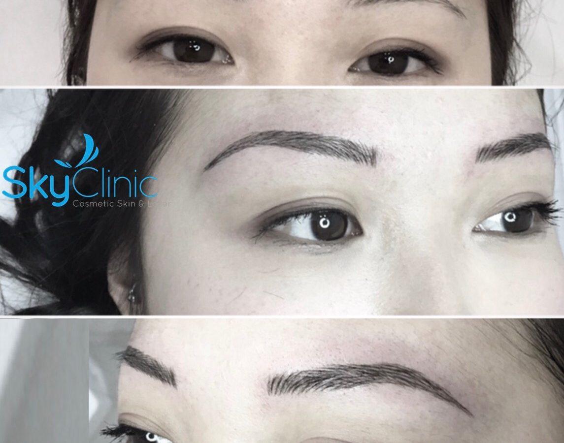 Eyebrow Microblading Sky Clinic