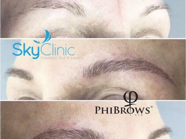 PHI brows Sky Clinic