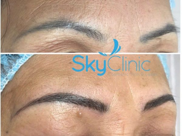 Microblading Sky Clinic