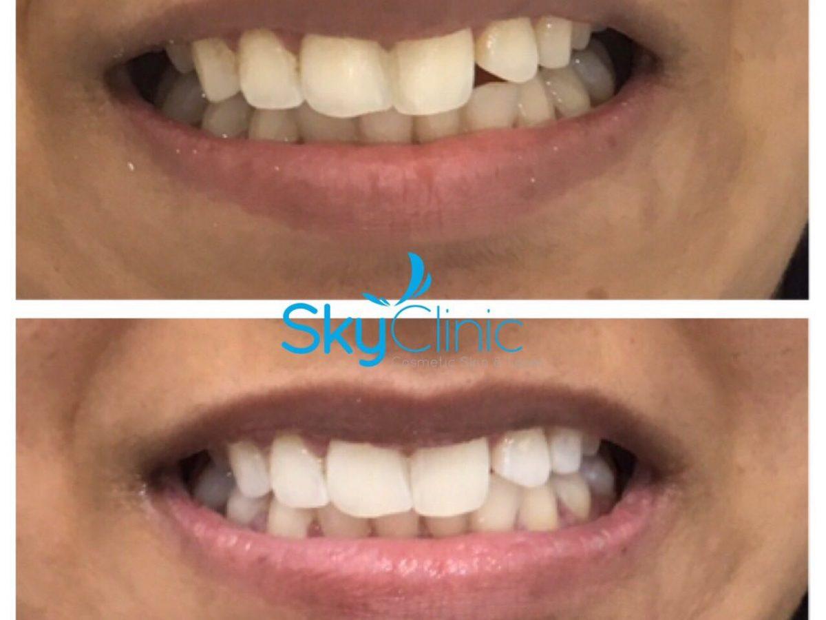 Teeth Brightening