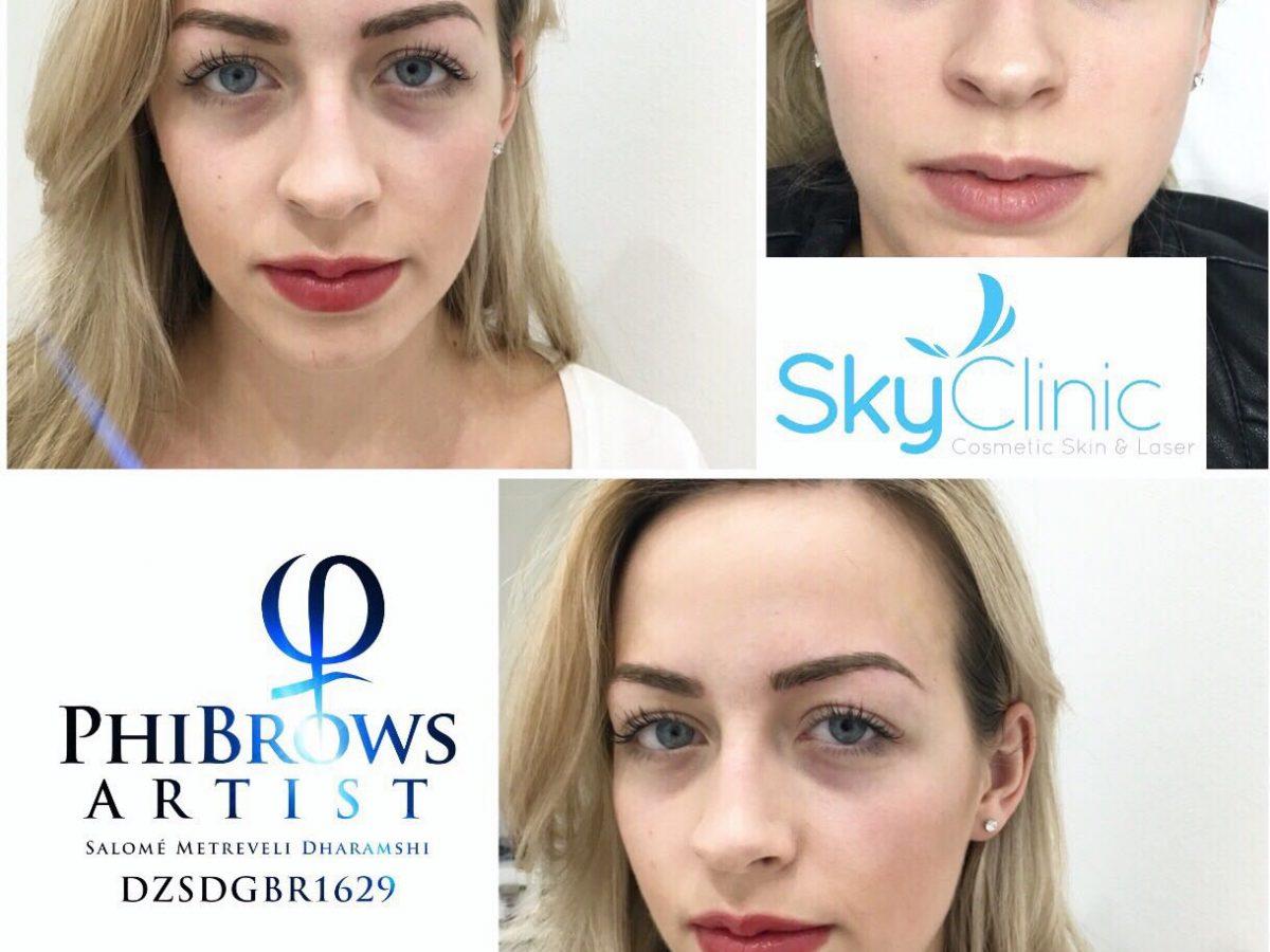 Semi Permanent Eyebrows Sky Clinic