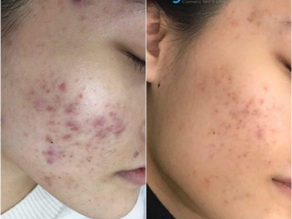 Acne Scar Treatment Dermapen Sky clinic