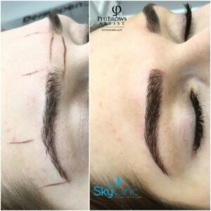 Perfect Eyebrows Microblading Sky Clinic