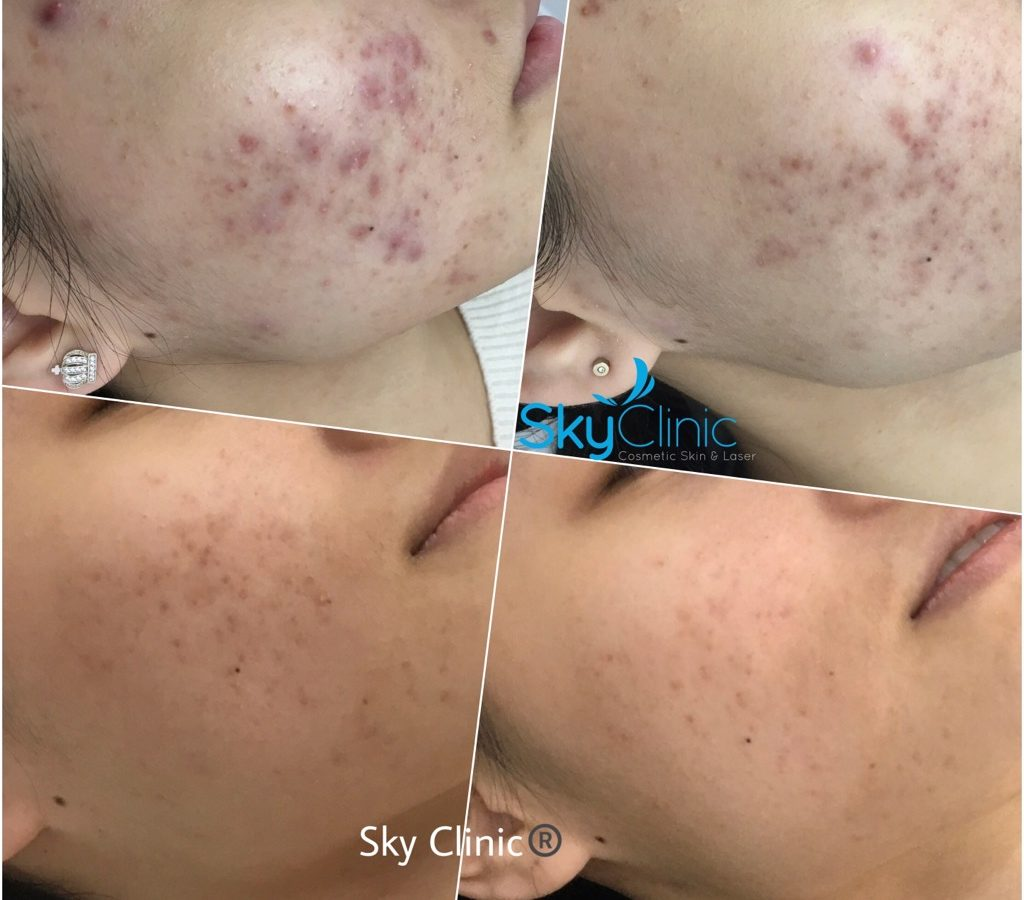Acne and Acne Scaring Treatment Sky Clinic