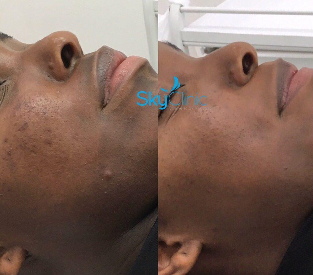sky Clinic, uneven skin tone hyper pigmentation Acne Scarring