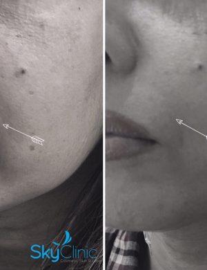 Nasolabial lines treatment Sky Clinic
