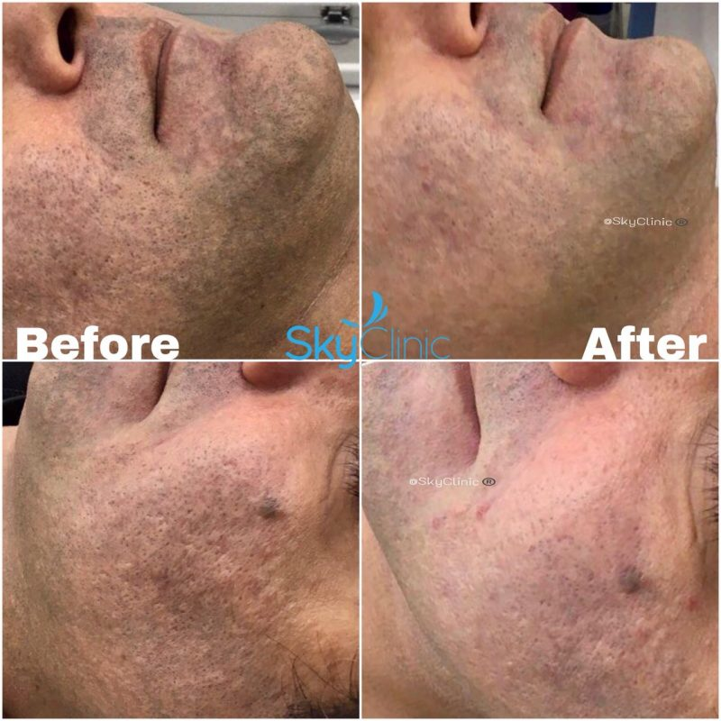 PIGMENATION ACNE SCARRING DERMAPEN MICRO NEEDLING