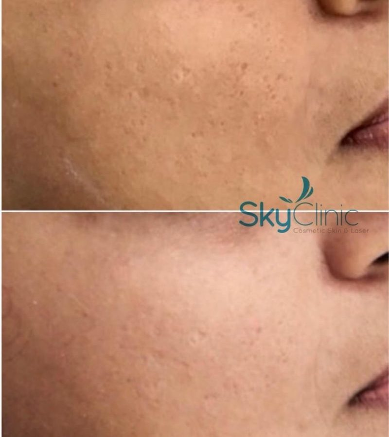 ENLARGED PORES DERMAPEN MICRO NEEDLING SKY CLINIC