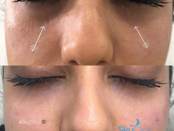 Under Eye Tear Trough Treatment Sky Clinic