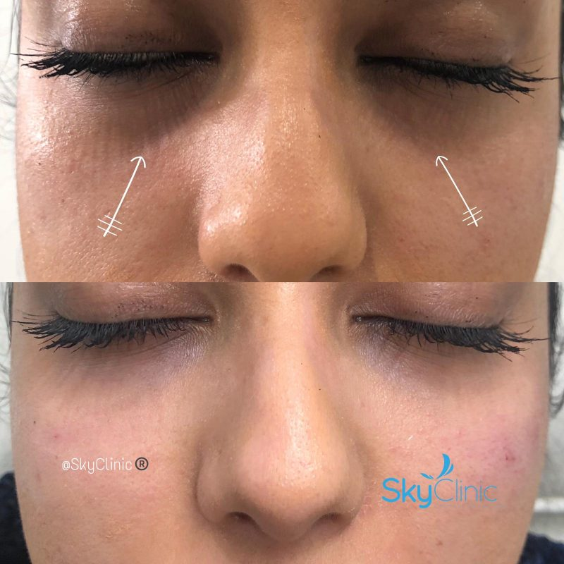 Under Eye Tear Trough Treatment Sky Clinic